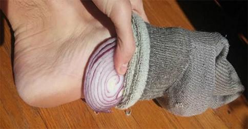 cibule-v-ponozcke